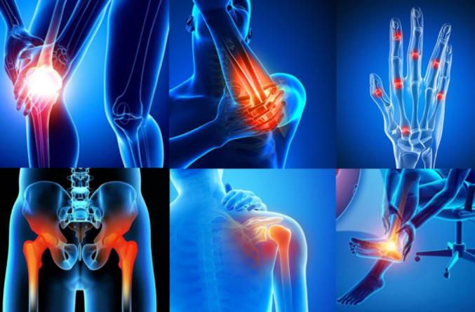 Артрит и артроза: Каква е разликата, какво е различно, лечение с народни средства | Болки в ставите