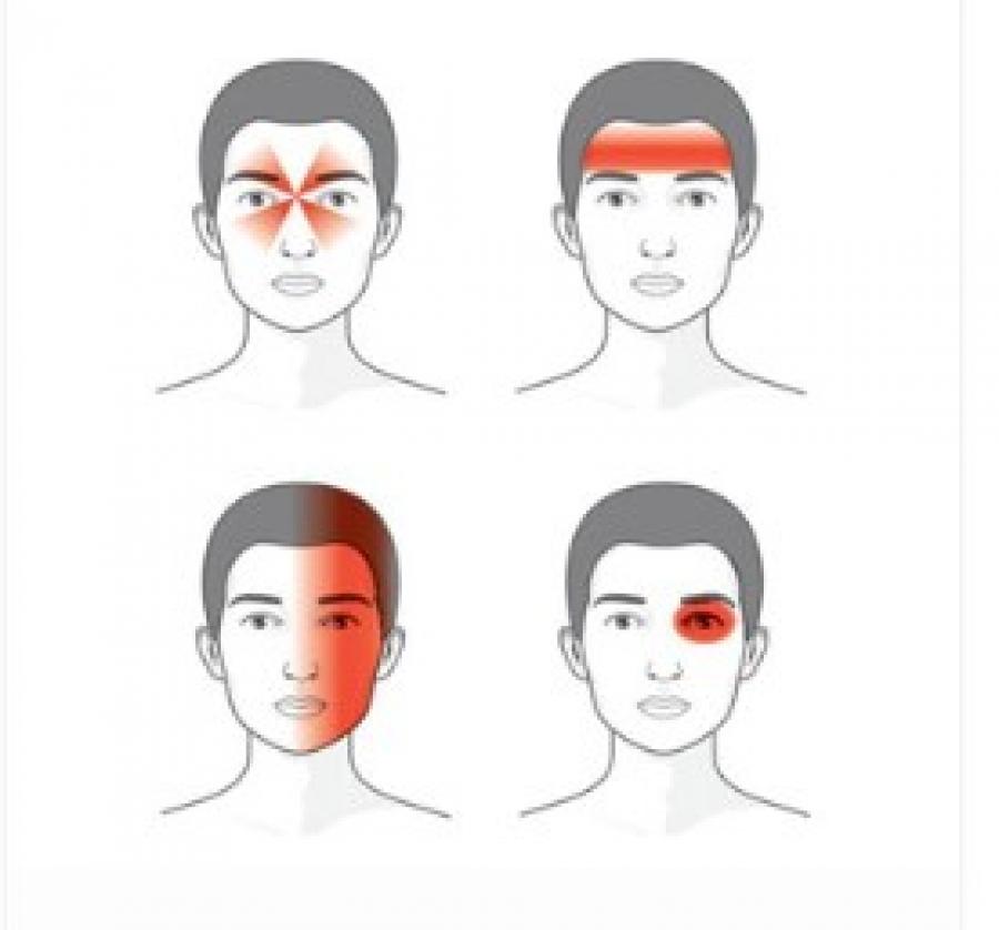 Главоболие: причини, видове, диагноза и лечение..