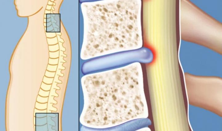 Ревматоиден артрит гръбначен стълб