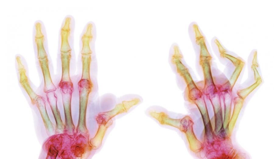Юношески артрит, неуточнен | мкб M