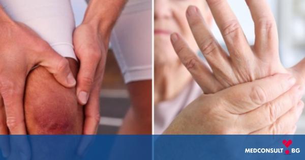 Как се открива артрит