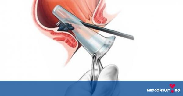 Най-често срещаните диагностични методи при хемороиди