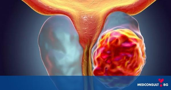 Рак на простатата: симптоми и лечение