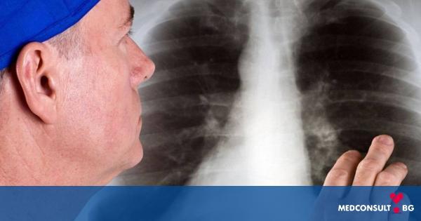 Всяка година стотици хиляди хора умират от рак на белия дроб - какви са възможностите за лечение