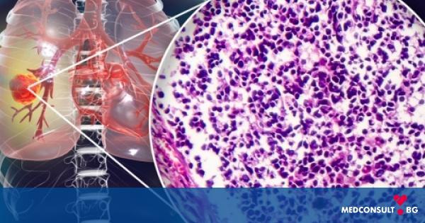 Рак на белия дроб - симптоми, диагноза и лечение