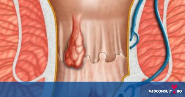 Видове хемороиди и методи за лечение