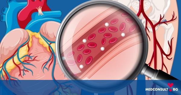 """""""Медика"""" продължава кампанията за профилактика на исхемичната болест на сърцето и периферната съдова болест"""