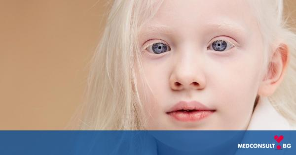 Албинизъм - как се проявява по кожата