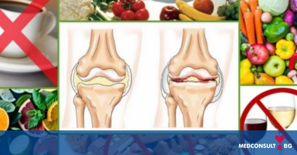 10 храни за страдащи от артрит