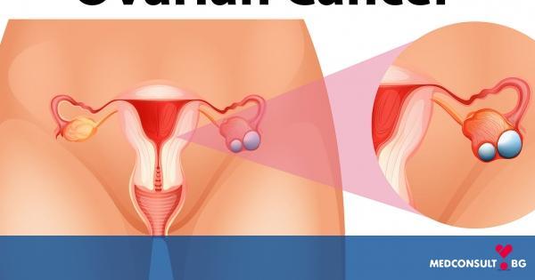 Научен пробив: Днес е възможно ракът на яйчниците да бъде открит рано