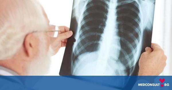 Нелекуваната туберкулоза може да доведе до слепота и смърт