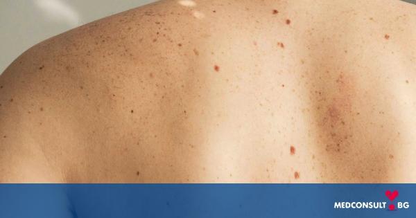 10 опасни мита за рака на кожата