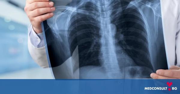 Рак на белия дроб: причини, симптоми и лечение