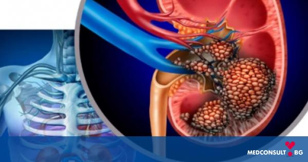 Бъбречна биопсия - всичко, което трябва да знаете