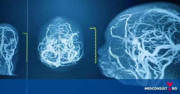 Мозъчна аневризма води до главоболие