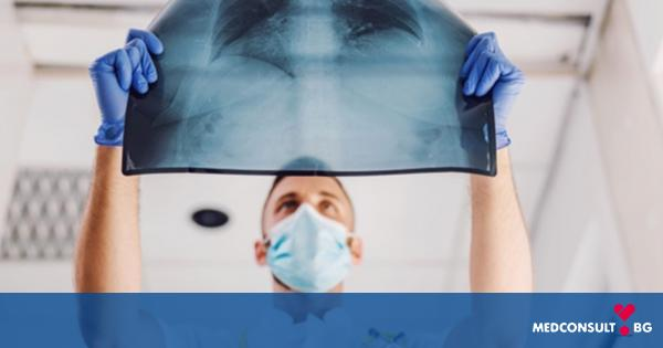 Дребноклетъчен рак на белия дроб и химиотерапия