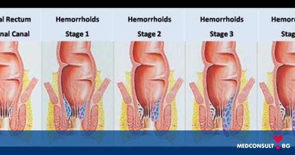Какво представляват хемороидите