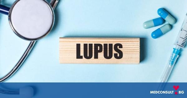 Лупус - причини, симптоми, лечение