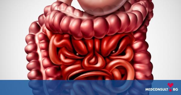 Лечение на синдрома на раздразненото черво