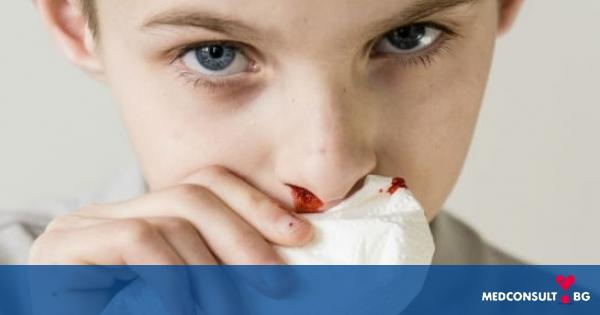 Кръв от носа - Medconsult.bg