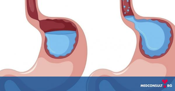 Гастроезофагеална рефлуксна болест