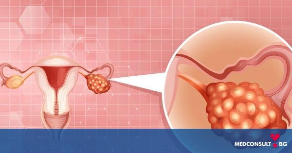 Рак на яйчниците - шансове за възстановяване