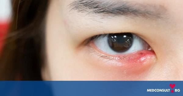 Как да лекуваме ечемик на окото