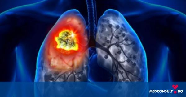 Лечения на напреднал рак на белия дроб