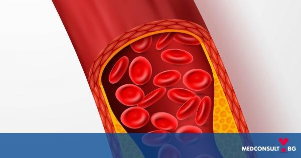 Атеросклероза - проява, диагностика, лечение, последици