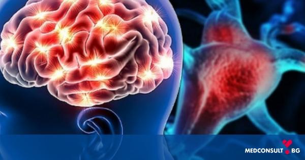 Инсулт - диагностика и лечение