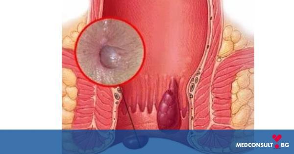 Най-разпространеното заболяване - хемороиди