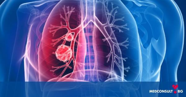 Лечение за метастази на рак на белия дроб