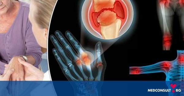 Болка в ставите при ревматоиден артрит