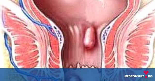 Повече от 10% от населението страда от хемороиди