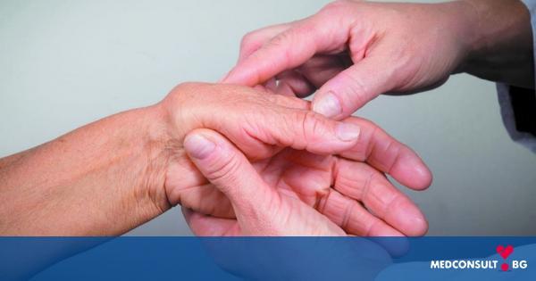 Как да се справяме по-добре със симптомите на ревматоидния артрит