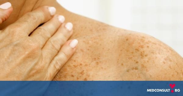 Рак на кожата - основни видове, рискови фактори и лечение