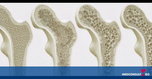Остеопороза - фрактура на костите