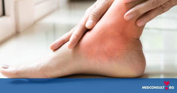 Ревматоиден артрит - симптоми, диагностика, лечение