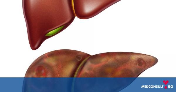 Чернодробната цироза