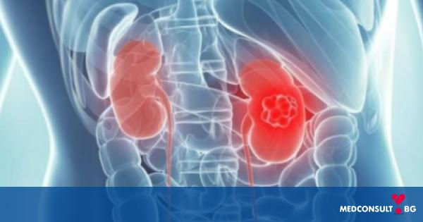 Рак на бъбреците - симптоми, видове, рискови фактори,