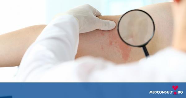Случаите на рак на кожата при хора под 35 години намаляват