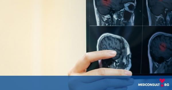 Множествената склероза засяга централната нервна система