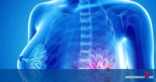 Рак на гърдата: всички факти, които е важно да знаете