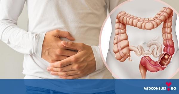 От какво значение са симптомите на рака на дебелото черво