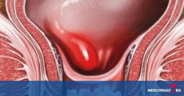 Хемороиди и тяхното лечение